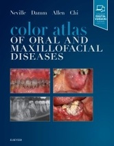 Color Atlas of Oral and Maxillofacial Diseases, 1st Edition