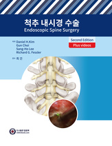 척추 내시경 수술 2판 [원제: Endoscopic Spine Surgery, 2nd Edition]